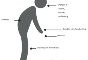 Parkinson, maladie neurodégénérative, symptômes - source NeuroPath